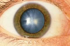 Причины и симптомы катаракты
