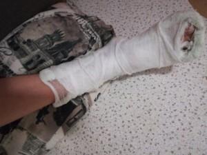 14-летний подросток сломал палец ноги при катании с ледовой горки