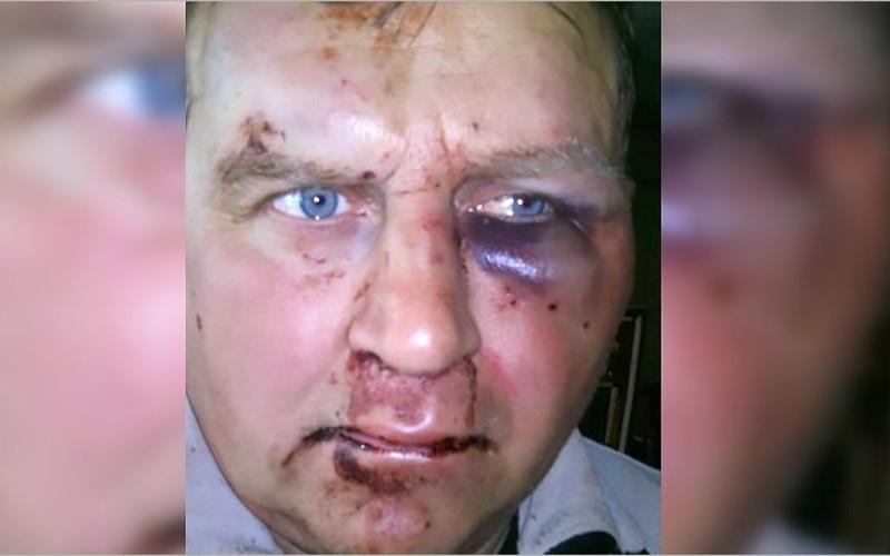 В Жуковке жестоко избили известного в городе видеоблогера Владимира Чесалина