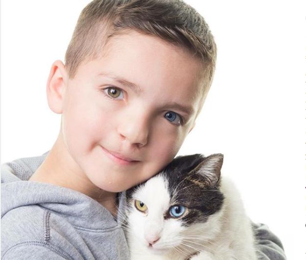 Мальчик сгетерохромией нашел себе необычного друга
