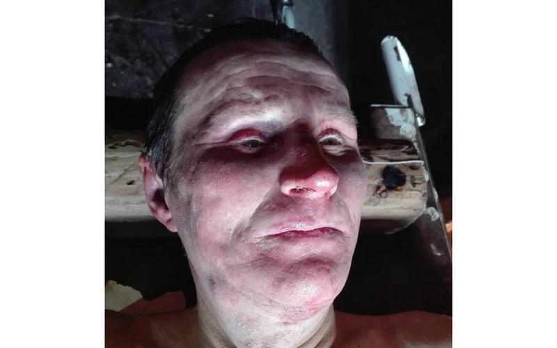 Полиция в Новозыбкове  устанавливает личность погибшего мужчины