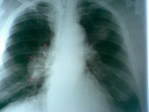 Число заболевших туберкулезом в Челябинской области снижается