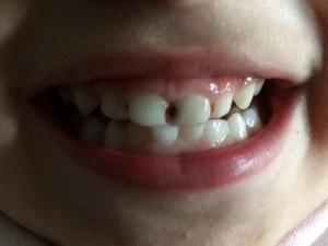 4-летний мальчик получил химический ожог в стоматологии
