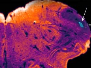 Неизвестный ранее участок мозга обнаружили нейробиологи