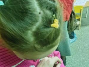 С клещем в голове пятилетняя девочка бегала по больницам в надежде на помощь