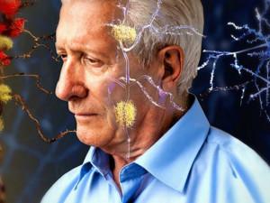 Чрезмерная сонливость днем может быть симптомом болезни Альцгеймера
