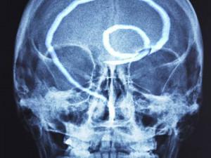 Тридцать лет с инородным существом в мозгу прожил мужчина в Китае