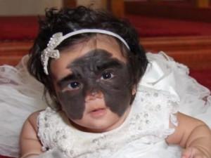 Девочка с «маской Бэтмена» перенесла первую операцию в Краснодаре