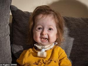 Из-за генетической мутации, британская девочка в два года «стала бабушкой»
