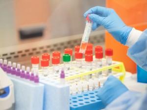 От коронавируса в Челябинской области умирают больше, чем в других регионах Урала
